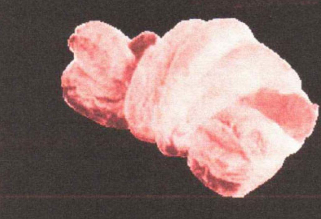 Richiamati i Cornettini Wurstel Baker & Baker per presenza di ossido di etilene